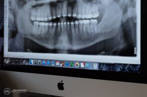 028(5DS14313)-TrailheadDentalMKT_800x.jpg